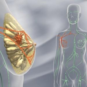 Brustkrebs ist die häufigste Tumorart bei Frauen