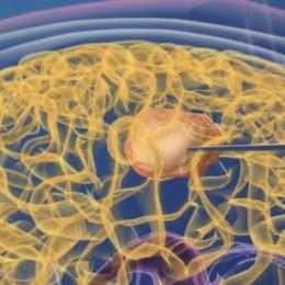 Magnetische Nanoteilchen werden direkt in den Tumor gespritzt