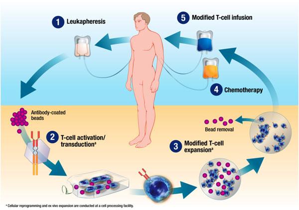 Patienteneigene T-Zellen werden mittels Apherese entnommen, gentechnisch modifiziert und dem Patienten wieder verabreicht: Fertig ist die Immuntherapie.