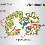 Vergleich eines gesunden und eines an Alzheimer erkrankten Gehirns.